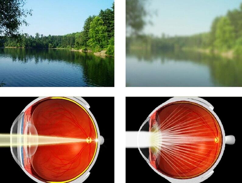 Mắt mờ một bên là triệu chứng thường gặp ở người bệnh đục thủy tinh thể